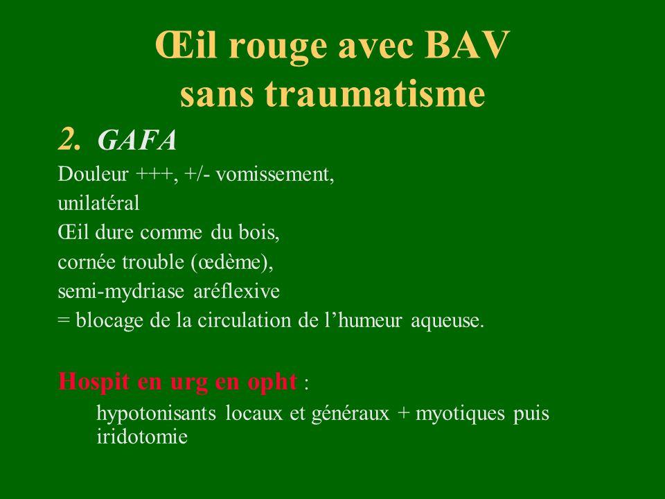 Œil rouge avec BAV sans traumatisme 2. GAFA Douleur +++, +/- vomissement, unilatéral Œil dure comme du bois, cornée trouble (œdème), semi-mydriase aré