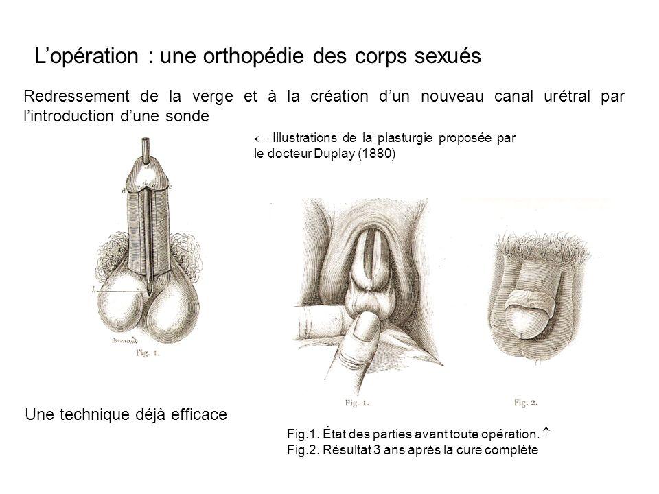 Lopération : une orthopédie des corps sexués Redressement de la verge et à la création dun nouveau canal urétral par lintroduction dune sonde Illustra