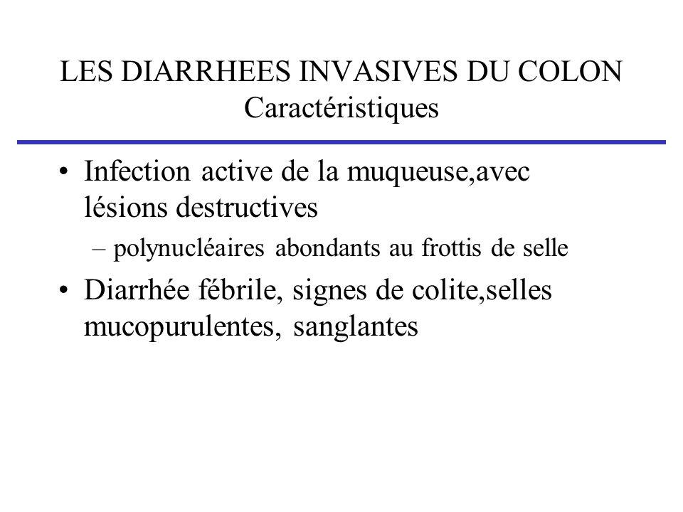 LES DIARRHEES INVASIVES DU COLON Caractéristiques Infection active de la muqueuse,avec lésions destructives –polynucléaires abondants au frottis de se