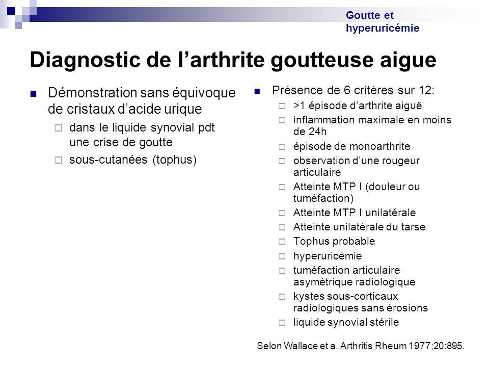 Goutte et hyperuricémie Diagnostic de larthrite goutteuse aigue Démonstration sans équivoque de cristaux dacide urique dans le liquide synovial pdt un
