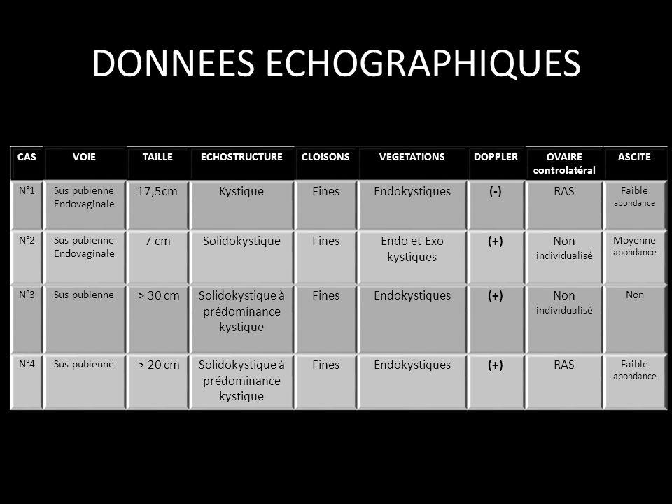 DONNEES ECHOGRAPHIQUES CASVOIETAILLEECHOSTRUCTURECLOISONSVEGETATIONSDOPPLEROVAIRE controlatéral ASCITE N°1Sus pubienne Endovaginale 17,5cmKystiqueFine