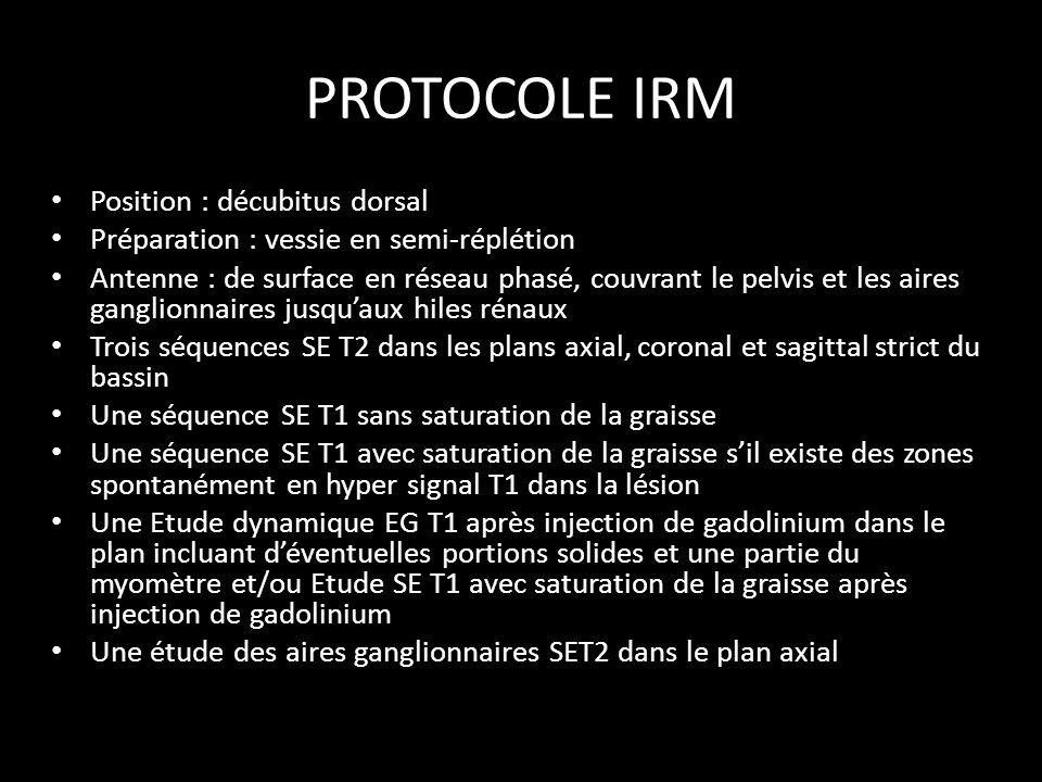 PROTOCOLE IRM Position : décubitus dorsal Préparation : vessie en semi-réplétion Antenne : de surface en réseau phasé, couvrant le pelvis et les aires