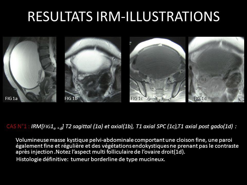 CAS N°1 : IRM[ FIG 1 a d ] T2 sagittal (1a) et axial(1b), T1 axial SPC (1c),T1 axial post gado(1d) : Volumineuse masse kystique pelvi-abdominale compo