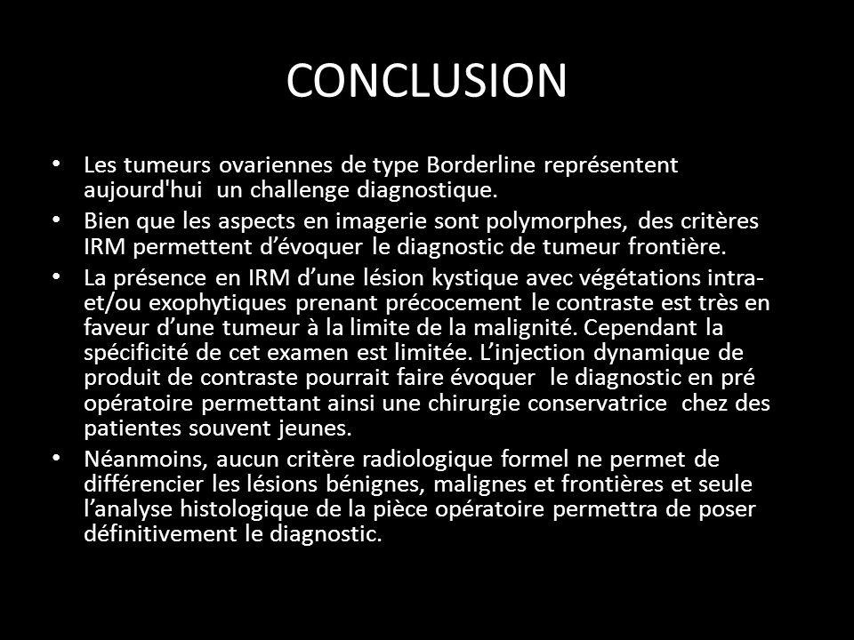 CONCLUSION Les tumeurs ovariennes de type Borderline représentent aujourd'hui un challenge diagnostique. Bien que les aspects en imagerie sont polymor