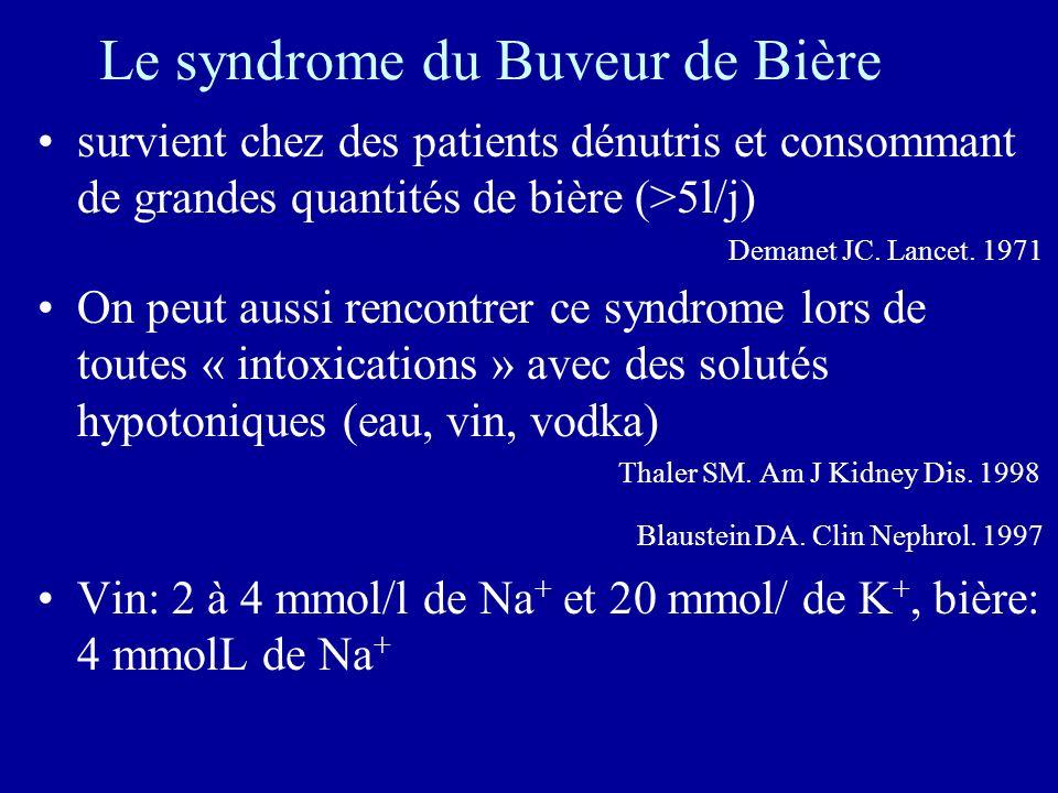 Le syndrome du Buveur de Bière survient chez des patients dénutris et consommant de grandes quantités de bière (>5l/j) Demanet JC.