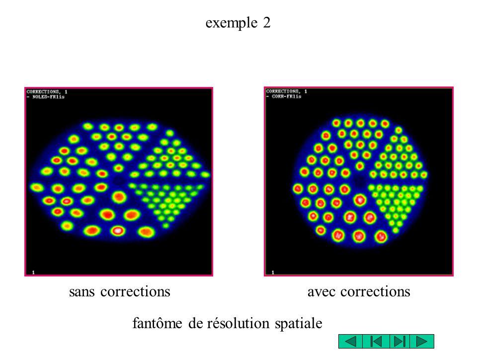 exemple 2 sans correctionsavec corrections fantôme de résolution spatiale