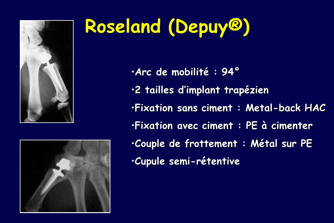 Roseland (Depuy®) Arc de mobilité : 94°Arc de mobilité : 94° 2 tailles dimplant trapézien2 tailles dimplant trapézien Fixation sans ciment : Metal-bac