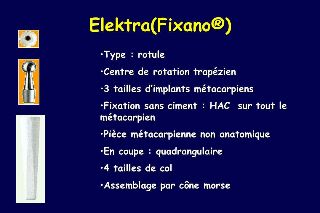 Elektra(Fixano®) Type : rotuleType : rotule Centre de rotation trapézienCentre de rotation trapézien 3 tailles dimplants métacarpiens3 tailles dimplan