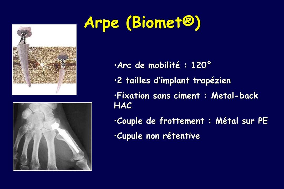 Arpe (Biomet®) Arc de mobilité : 120°Arc de mobilité : 120° 2 tailles dimplant trapézien2 tailles dimplant trapézien Fixation sans ciment : Metal-back