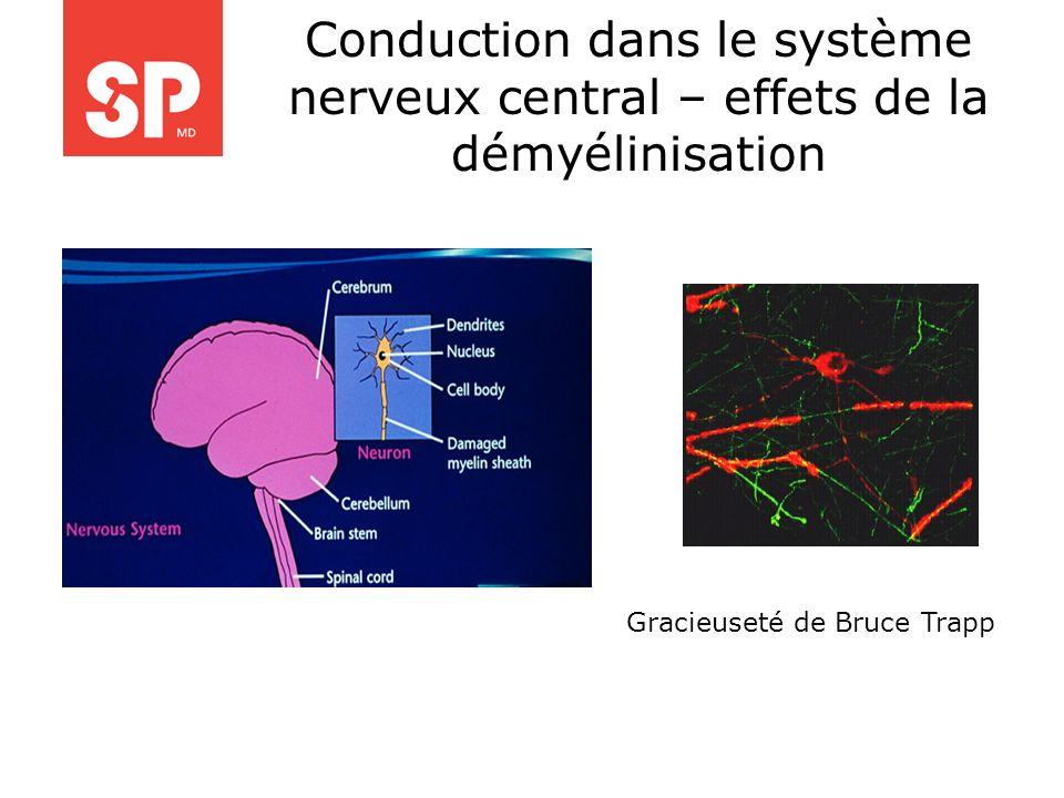 Conduction dans le système nerveux central – effets de la démyélinisation Gracieuseté de Bruce Trapp