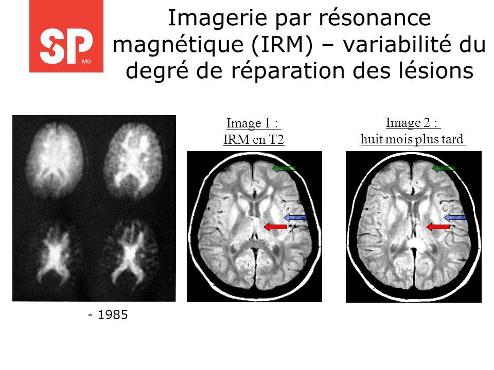 Imagerie par résonance magnétique (IRM) – variabilité du degré de réparation des lésions Image 1 : IRM en T2 Image 2 : huit mois plus tard - 1985