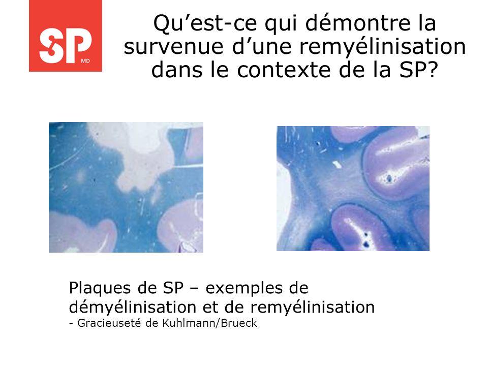 Quest-ce qui démontre la survenue dune remyélinisation dans le contexte de la SP? Plaques de SP – exemples de démyélinisation et de remyélinisation -