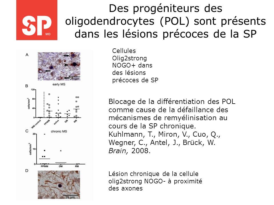Des progéniteurs des oligodendrocytes (POL) sont présents dans les lésions précoces de la SP Lésion chronique de la cellule olig2strong NOGO- à proxim