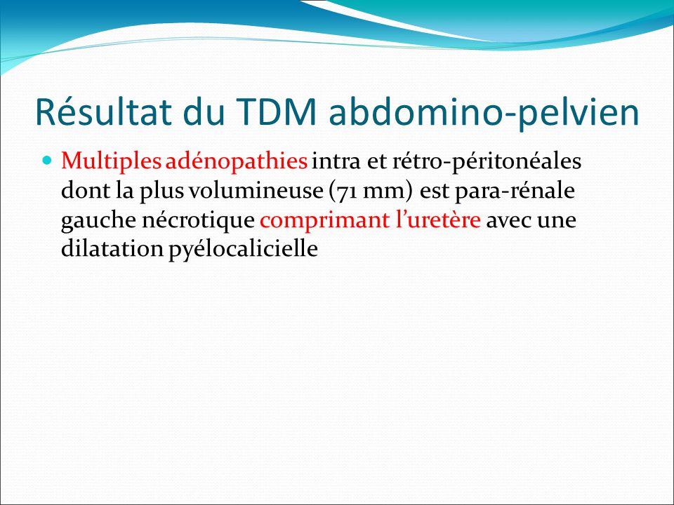 Résultat du TDM abdomino-pelvien Multiples adénopathies intra et rétro-péritonéales dont la plus volumineuse (71 mm) est para-rénale gauche nécrotique comprimant luretère avec une dilatation pyélocalicielle
