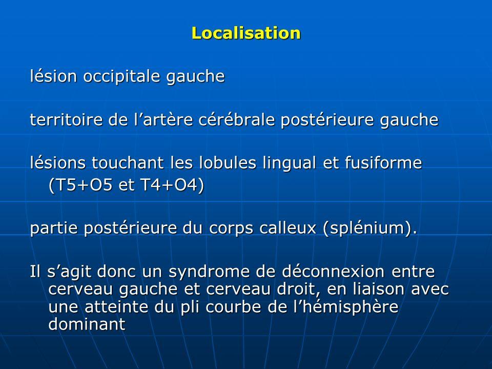 Localisation lésion occipitale gauche territoire de lartère cérébrale postérieure gauche lésions touchant les lobules lingual et fusiforme (T5+O5 et T
