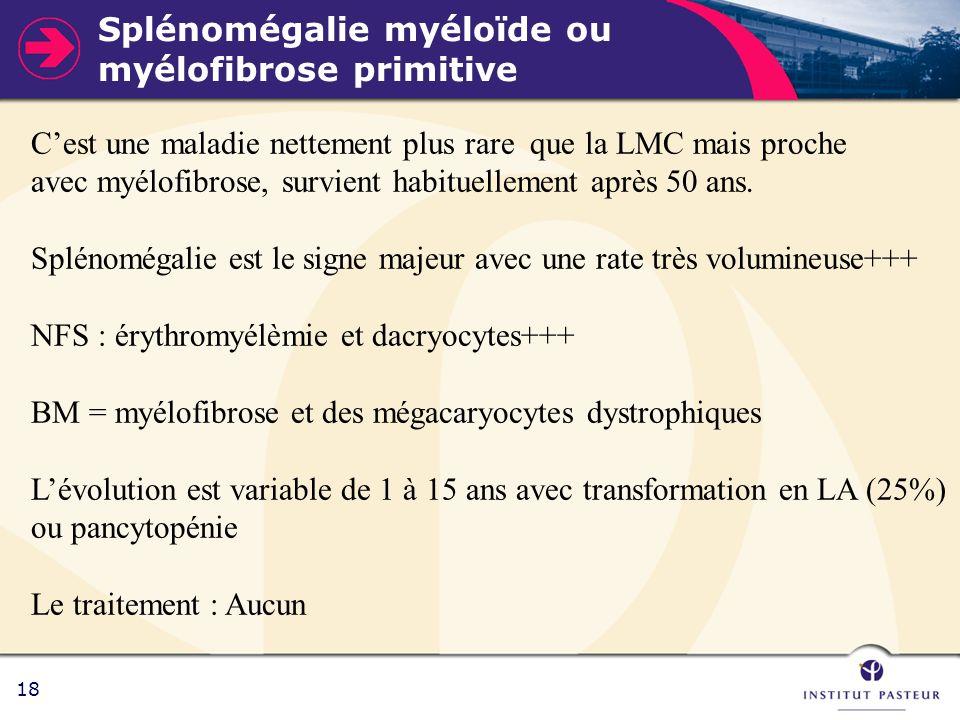 18 Splénomégalie myéloïde ou myélofibrose primitive Cest une maladie nettement plus rare que la LMC mais proche avec myélofibrose, survient habituelle