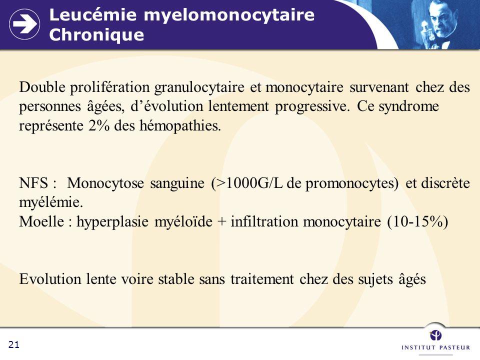21 Leucémie myelomonocytaire Chronique Double prolifération granulocytaire et monocytaire survenant chez des personnes âgées, dévolution lentement pro