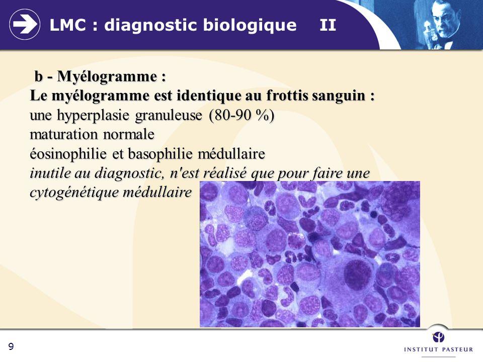 10 LMC : diagnostic biologique III c - Cytogénétique : le chromosome philadelphie : c - Cytogénétique : le chromosome philadelphie : - quasi-totalité des patients (95%) - non spécifique + LAL Ph+ - recherche effectuée sur la moelle - Suivi de la réponse thérapeutique d – Autres examens biologiques - BOM (richesse médullaire ++) - PAL effondrées t translocation t(9,22) (q34,q11)