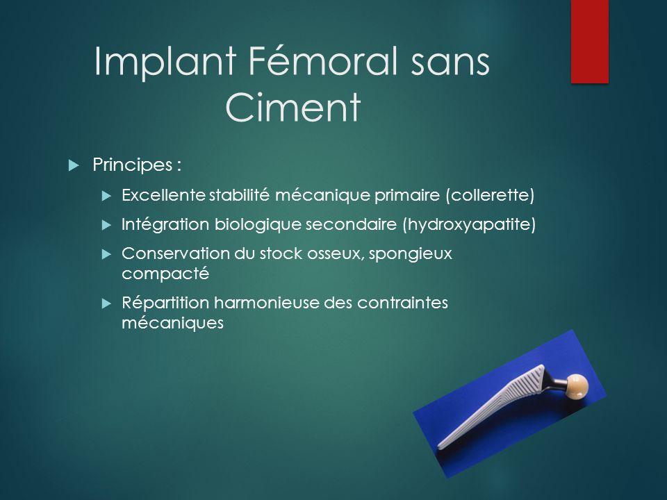Implant Fémoral sans Ciment Taux de survie supérieur aux implants scellés: 700 000 implantations en 25 ans 98.3% de survie à 10 et 14 ans (série de 2,956 cas.