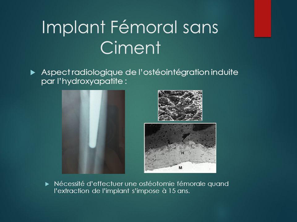 Implant Fémoral sans Ciment Nécessité deffectuer une ostéotomie fémorale quand lextraction de limplant simpose, même au delà de 15 ans.