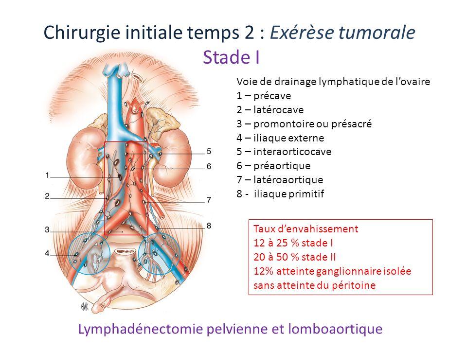 Lymphadénectomie pelvienne et lomboaortique Voie de drainage lymphatique de lovaire 1 – précave 2 – latérocave 3 – promontoire ou présacré 4 – iliaque