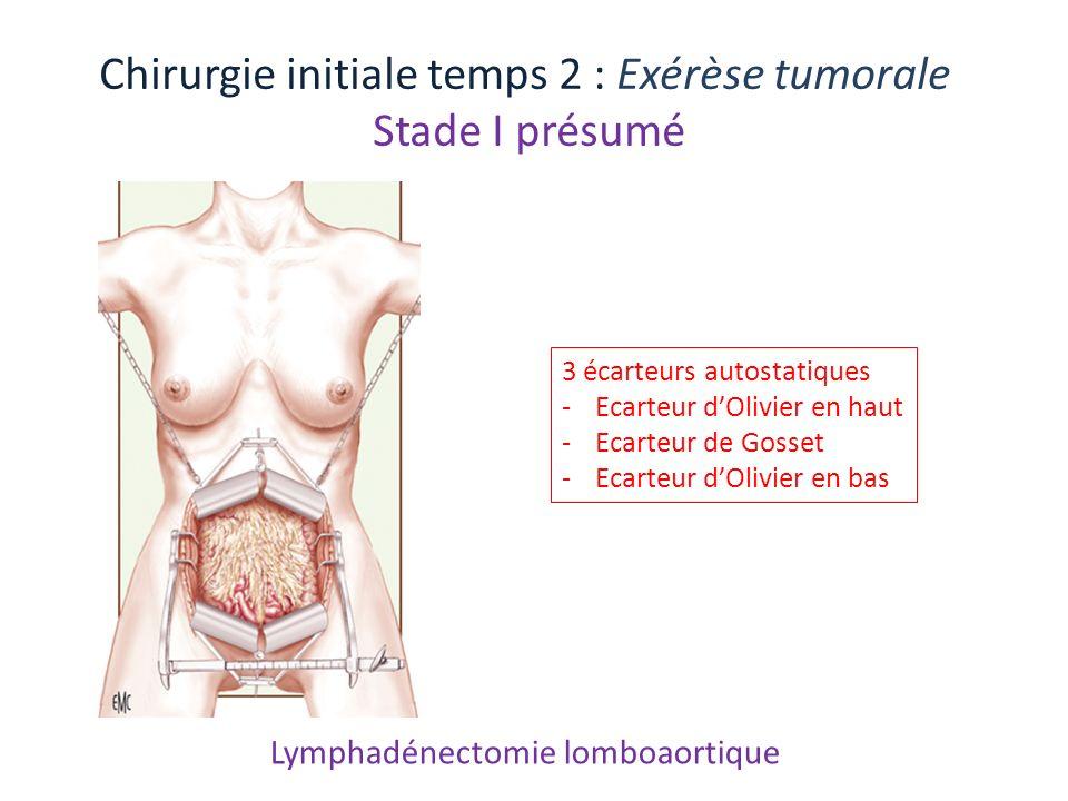 Lymphadénectomie lomboaortique Chirurgie initiale temps 2 : Exérèse tumorale Stade I présumé 3 écarteurs autostatiques -Ecarteur dOlivier en haut -Eca