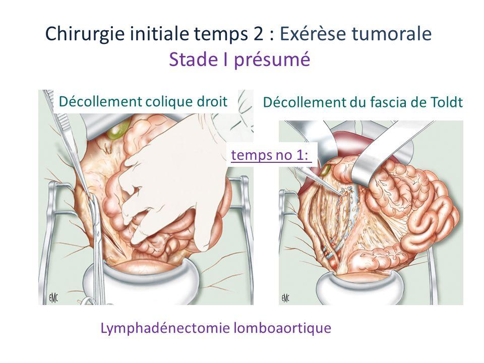 Lymphadénectomie lomboaortique Chirurgie initiale temps 2 : Exérèse tumorale Stade I présumé Décollement colique droit Décollement du fascia de Toldt