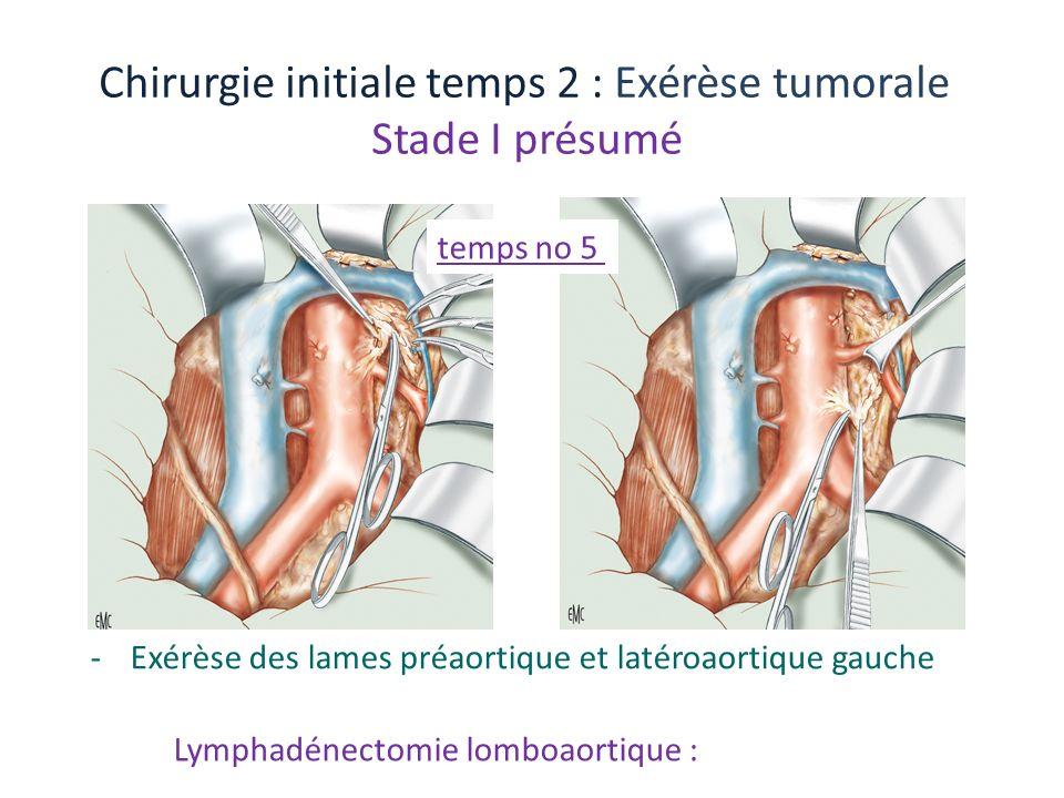 Lymphadénectomie lomboaortique : Chirurgie initiale temps 2 : Exérèse tumorale Stade I présumé -Exérèse des lames préaortique et latéroaortique gauche