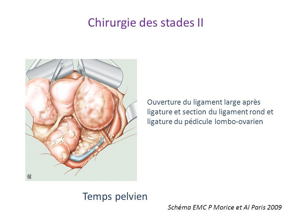 Temps pelvien Ouverture du ligament large après ligature et section du ligament rond et ligature du pédicule lombo-ovarien Schéma EMC P Morice et Al P