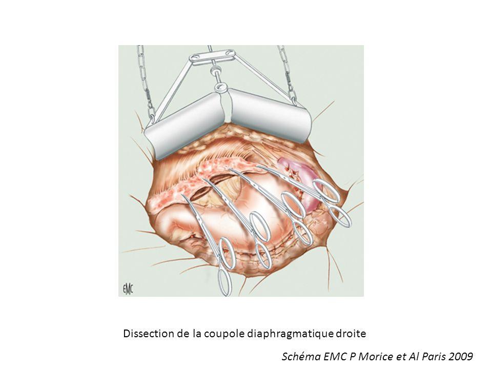 Dissection de la coupole diaphragmatique droite Schéma EMC P Morice et Al Paris 2009