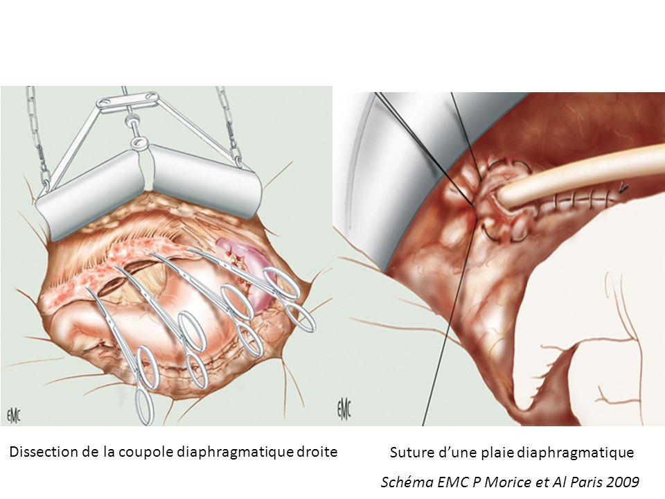 Dissection de la coupole diaphragmatique droite Suture dune plaie diaphragmatique Schéma EMC P Morice et Al Paris 2009