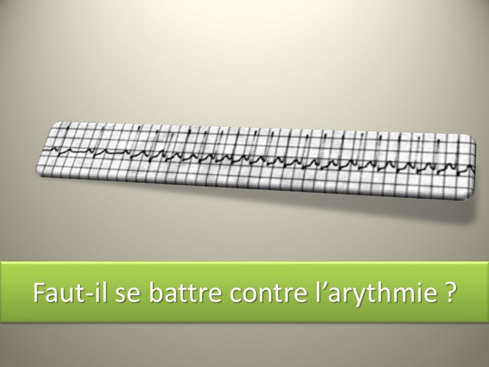 Faut-il se battre contre larythmie ?