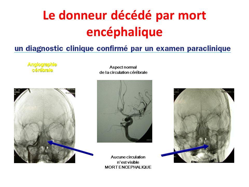 Aspect normal de la circulation cérébrale Aucune circulation nest visible MORT ENCEPHALIQUE Angiographie cérébrale Le donneur décédé par mort encéphal