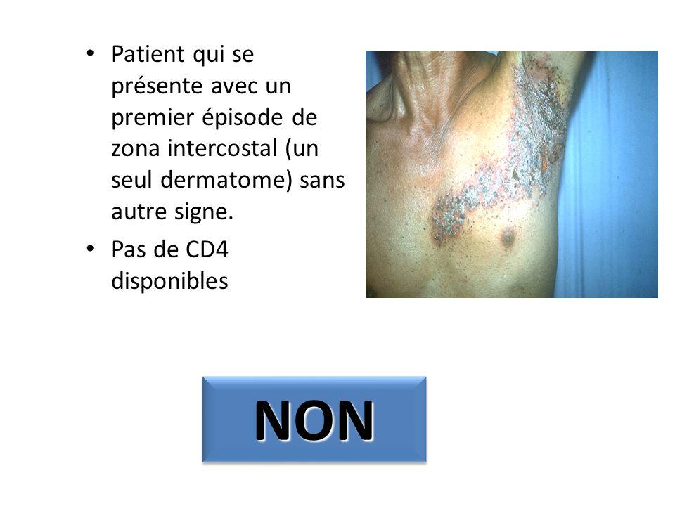 Patient qui se présente avec un premier épisode de zona intercostal (un seul dermatome) sans autre signe. Pas de CD4 disponibles NONNON