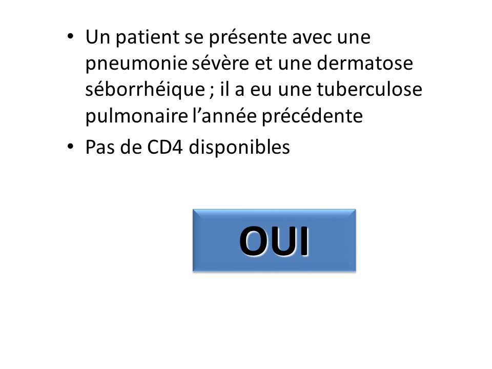 Un patient se présente avec une pneumonie sévère et une dermatose séborrhéique ; il a eu une tuberculose pulmonaire lannée précédente Pas de CD4 dispo