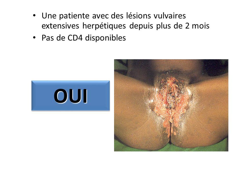 Une patiente avec des lésions vulvaires extensives herpétiques depuis plus de 2 mois Pas de CD4 disponibles OUIOUI