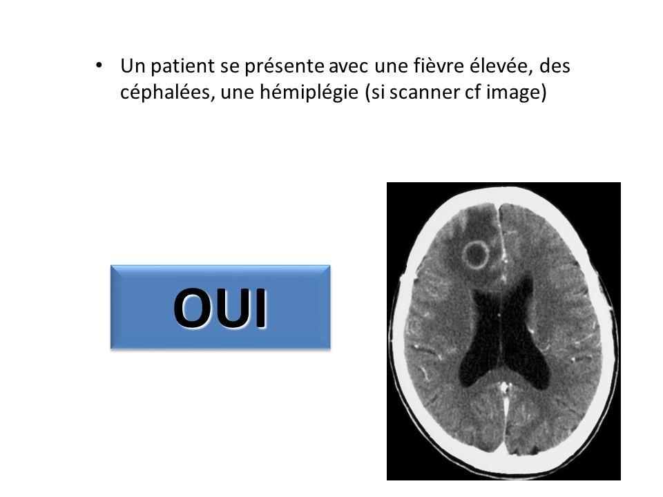 Un patient se présente avec une fièvre élevée, des céphalées, une hémiplégie (si scanner cf image) OUIOUI
