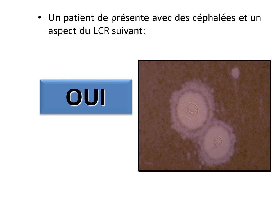 Un patient de présente avec des céphalées et un aspect du LCR suivant: OUIOUI