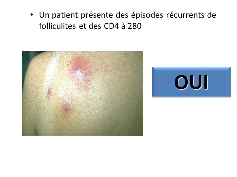 Un patient présente des épisodes récurrents de folliculites et des CD4 à 280 OUIOUI