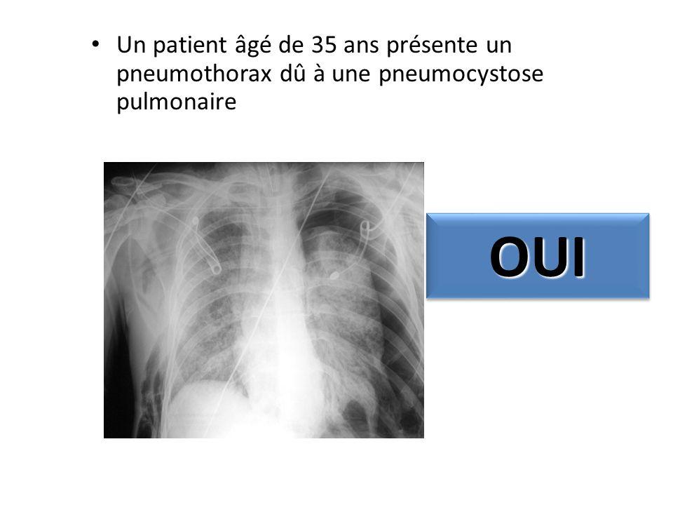 Un patient âgé de 35 ans présente un pneumothorax dû à une pneumocystose pulmonaire OUIOUI