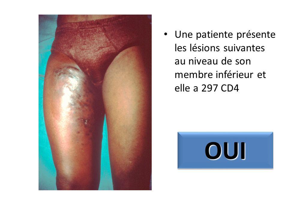 Une patiente présente les lésions suivantes au niveau de son membre inférieur et elle a 297 CD4 OUIOUI
