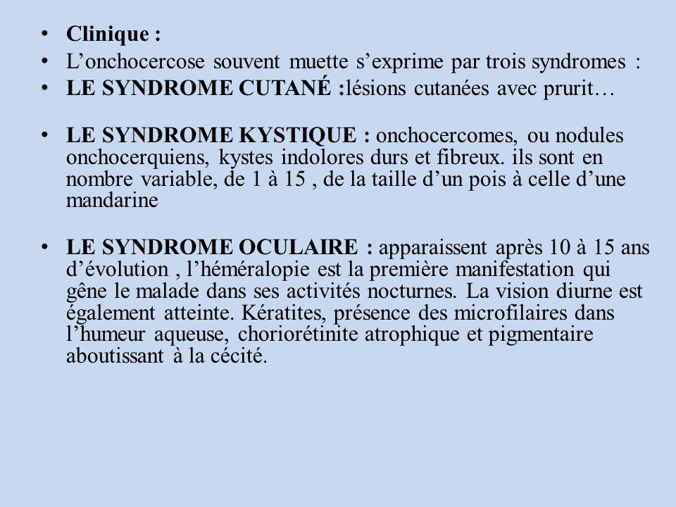 Clinique : Lonchocercose souvent muette sexprime par trois syndromes : LE SYNDROME CUTANÉ :lésions cutanées avec prurit… LE SYNDROME KYSTIQUE : onchocercomes, ou nodules onchocerquiens, kystes indolores durs et fibreux.