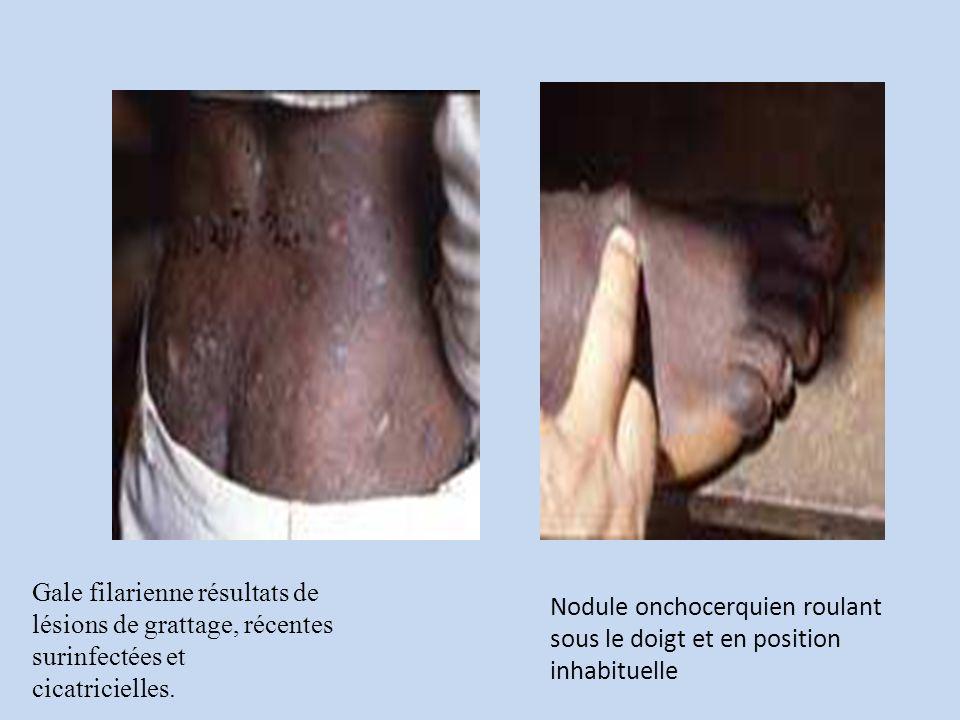 Gale filarienne résultats de lésions de grattage, récentes surinfectées et cicatricielles.