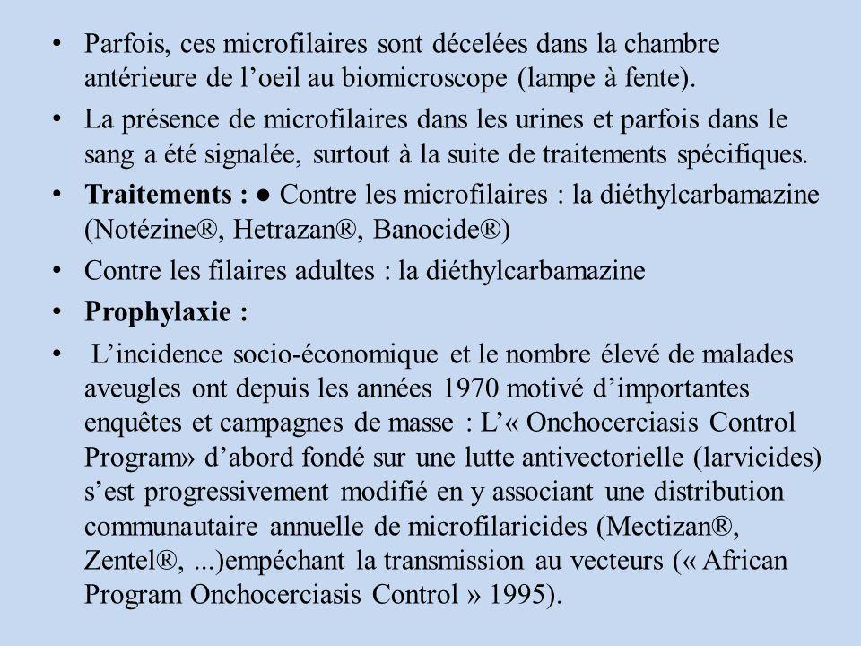 Parfois, ces microfilaires sont décelées dans la chambre antérieure de loeil au biomicroscope (lampe à fente).
