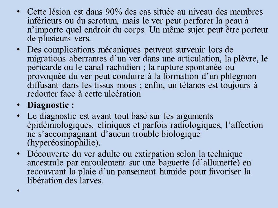 Cette lésion est dans 90% des cas située au niveau des membres inférieurs ou du scrotum, mais le ver peut perforer la peau à nimporte quel endroit du corps.