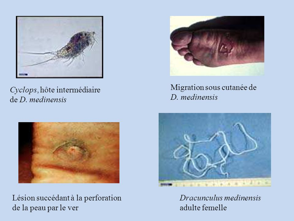 Cyclops, hôte intermédiaire de D.medinensis Migration sous cutanée de D.