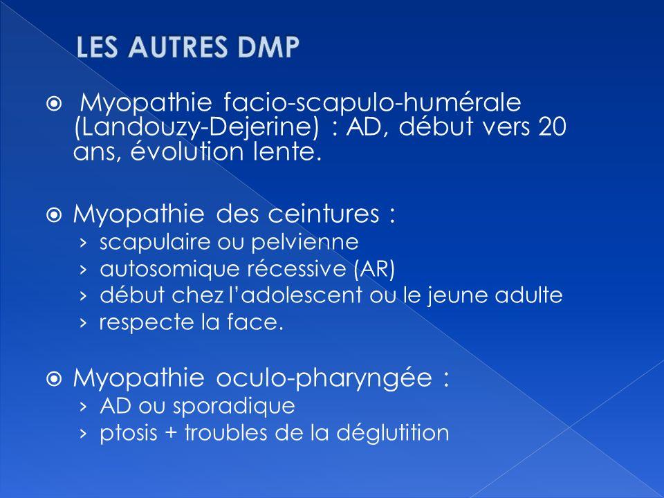 Myopathie facio-scapulo-humérale (Landouzy-Dejerine) : AD, début vers 20 ans, évolution lente. Myopathie des ceintures : scapulaire ou pelvienne autos