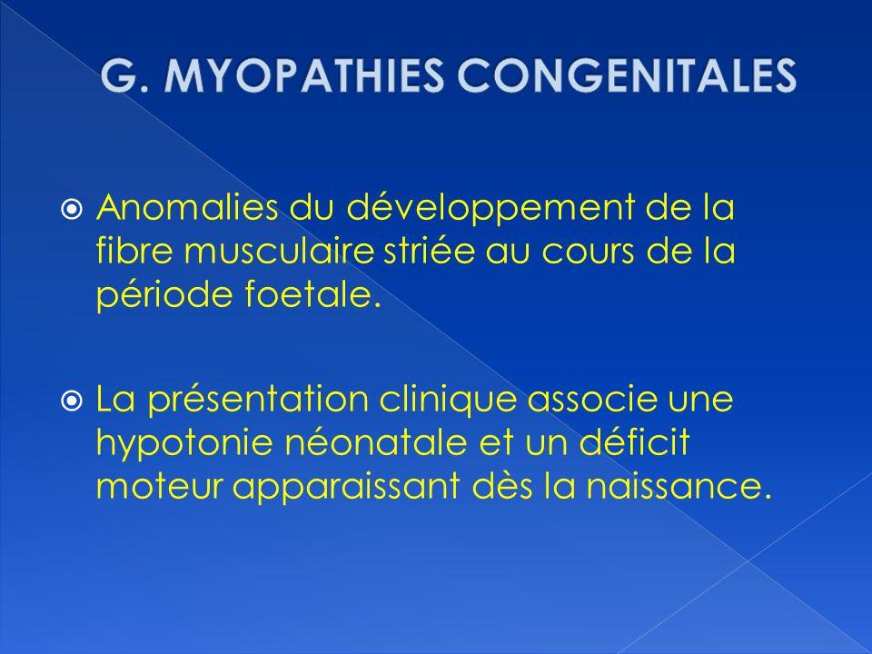 Anomalies du développement de la fibre musculaire striée au cours de la période foetale. La présentation clinique associe une hypotonie néonatale et u