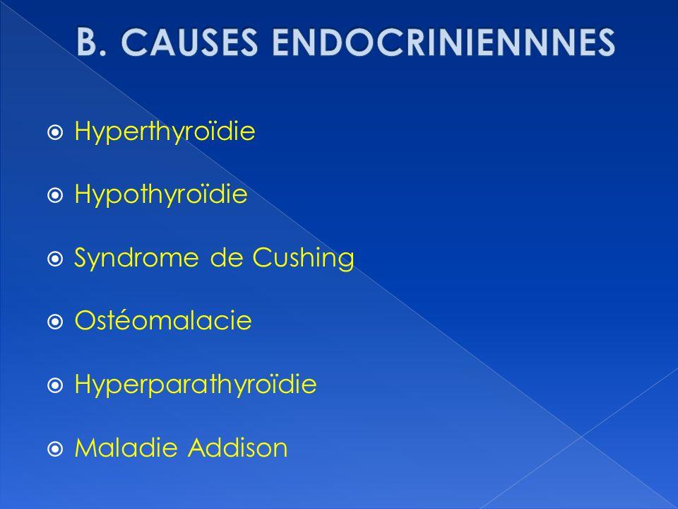 Hyperthyroïdie Hypothyroïdie Syndrome de Cushing Ostéomalacie Hyperparathyroïdie Maladie Addison