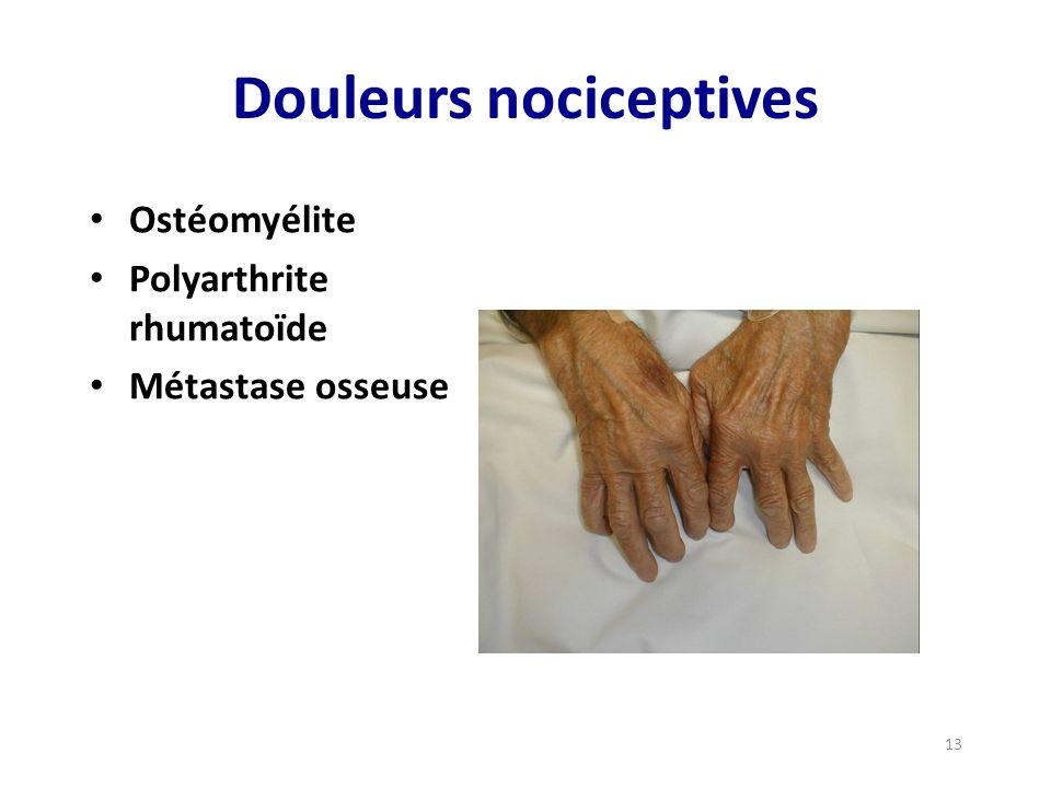 Douleurs nociceptives Ostéomyélite Polyarthrite rhumatoïde Métastase osseuse 13